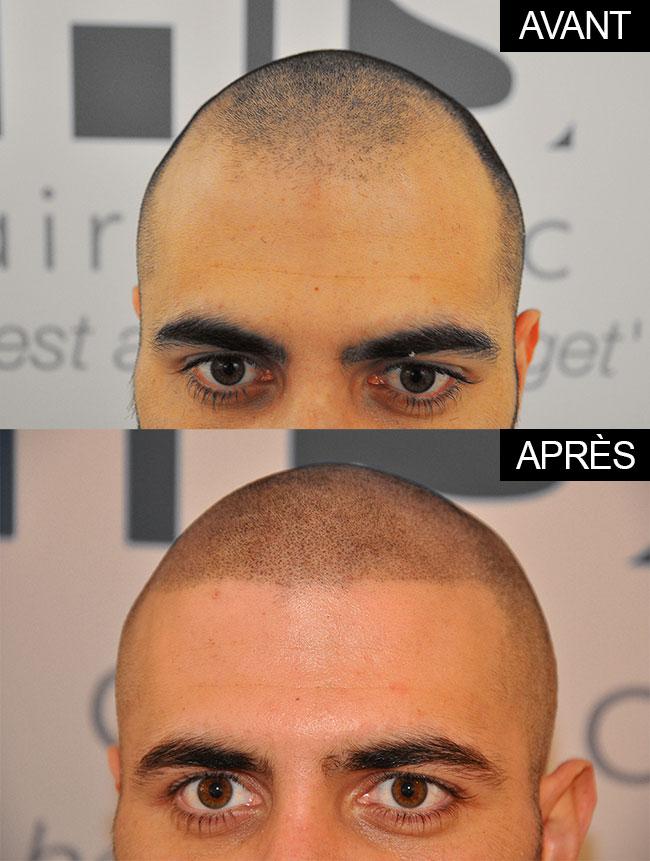 tatouage-perte-de-cheveux